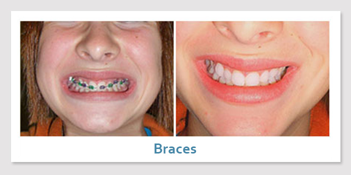 smile_gallery4a_braces