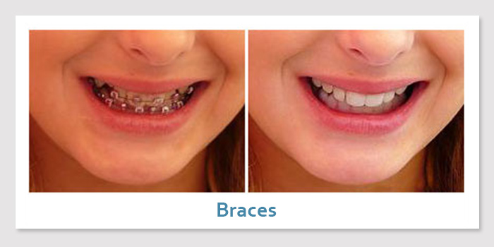 smile_gallery4b_braces