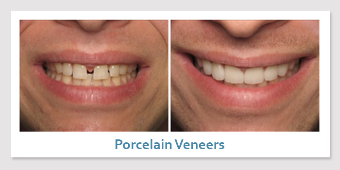 smile_gallery_2a_porcelain_veneers