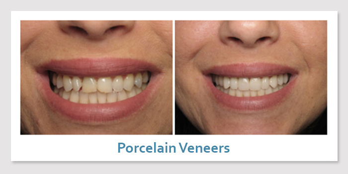 smile_gallery_2b_porcelain_veneers