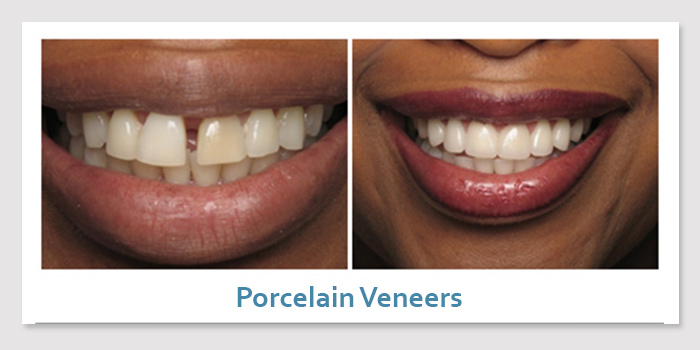 smile_gallery_2c_porcelain_veneers
