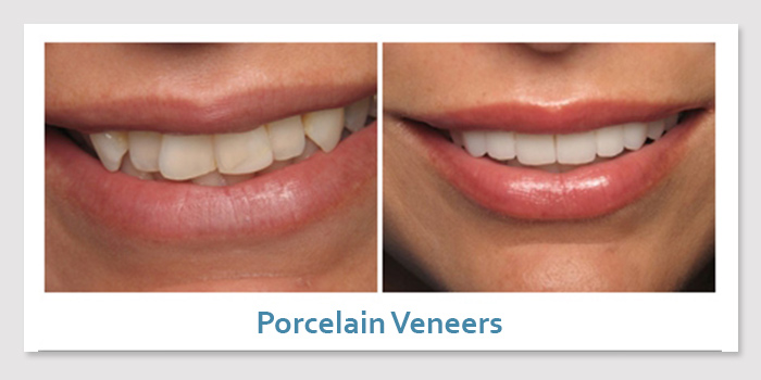 smile_gallery_2d_porcelain_veneers