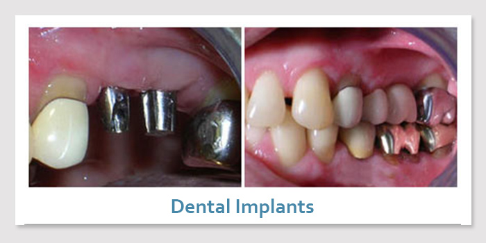 smile_gallery_3a_dental_implants