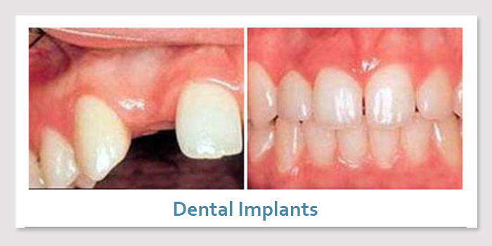 smile_gallery_3b_dental_implants