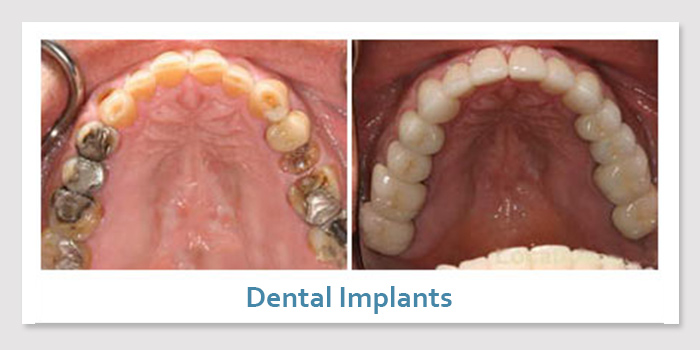 smile_gallery_3d_dental_implants