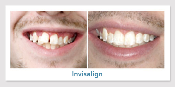 smile_gallery_4d_invisalign