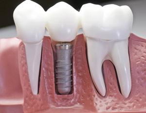 dental_implant_model