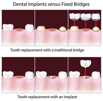 dental implants vs bridges diagram