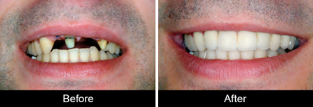 dental implant-before--after