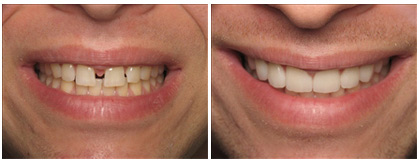 veneers beofre and after