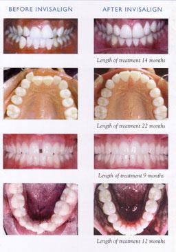 Invisalign-treatment-photos