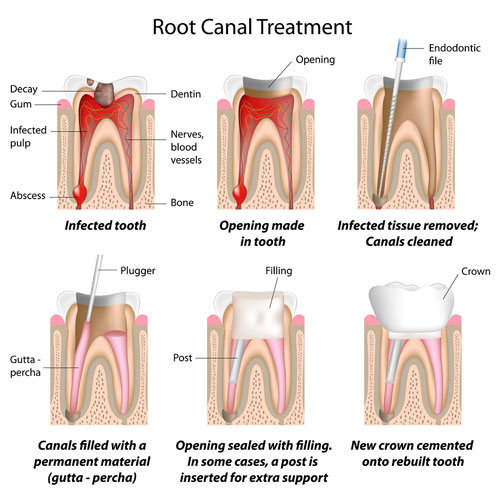 root canal treatment visual