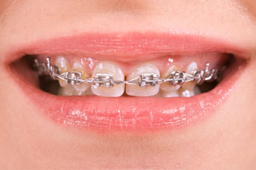 Braces for children and adults