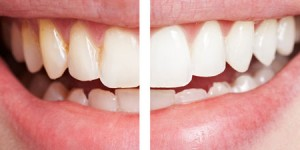 Service_teeth_whitening